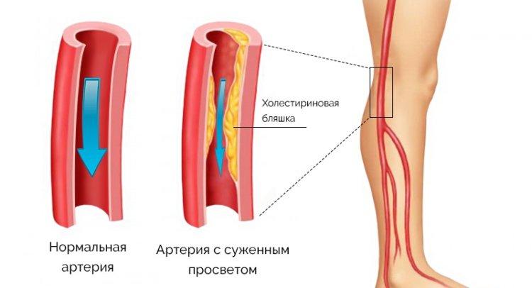 Смотреть Гипертония 2 степени – что это такое, симптомы и лечение. Как снизить артериальное давление при гипертонической болезни видео