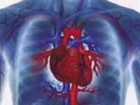 Изображение - Повышенное давление лечиться Metodyi-terapii-gipertenzii-200x150